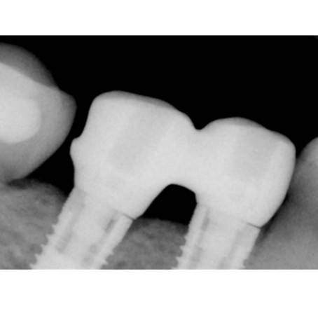 3 Hidden Causes of Implant Prosthetic Complications