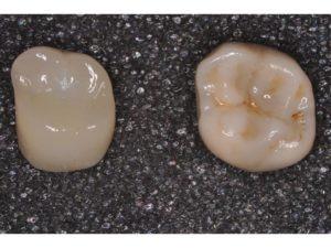 Left: lithium disilicate, full-contour.  Right: zirconia, full-contour.