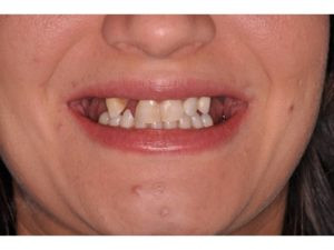 This patient has an average smile line showing just the tips of the papilla.