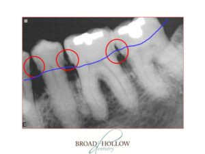 A Power Point illustrating periodontal disease.