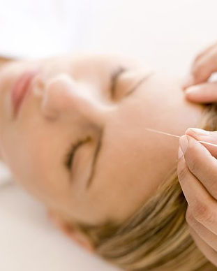 woman-receiving-acupuncture-treatment-ro