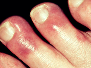 Winter is coming...the chilblains have arrived!