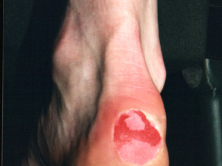 Blisters and the feet