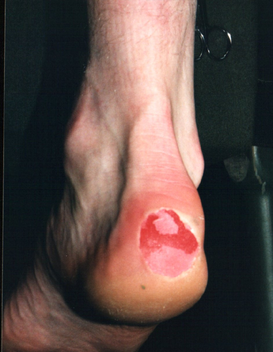 friction blister on the heel