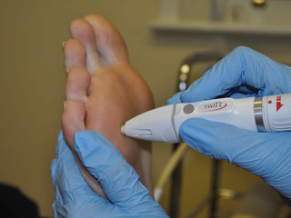 A world first in treating verrucae