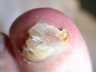 Have I got a fungal toe nail? Find out in five minutes.....