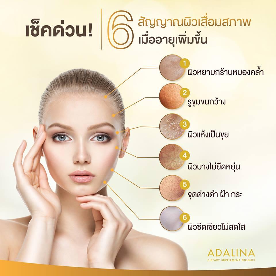 ไฮยาลูรอนนิก ของบริษัท Masterpiece Life Vision จำกัด เป็นเจ้าแรก เจ้าเดียวในประเทศไทยเพราะ มาสเตอร์พีซ ไลฟ์ วิชั่น เป็นเจ้าของลิขสิทธิ์หนึ่งเดียวในประเทศไทย ซึ่งไฮยาลูรอนนิก ชนิดนี้ผลิตจากประเทศญี่ปุ่น มีคุณสมบัติเทียบเท่ากับการฉีดฟิลเลอร์ เลยทีเดียว                    Adalina สเต็มเซลล์ ที่ได้จากการผ่านการวิจัยด้วยนาโนเทคโนโลยี สารสกัดจาก พืชพรรณ นานาชนิด 9 ชนิด ที่ได้รับการยอมรับว่า ดีที่สุด ในระดับนานาชาติ นวัตกรรมใหม่ ซึ่งผสานพลังจากธรรมชาติ 100% กระชากวัยต้านความชรา ความเสื่อมลึกถึงระดับเซลล์