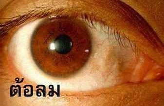 Luthina,ต้อเนื้อ,ต้อลม,ต้อกระจก,ต้อหิน,วุ้นในตา,ตาแห้ง,บำรุงสายตา,ลูธินา