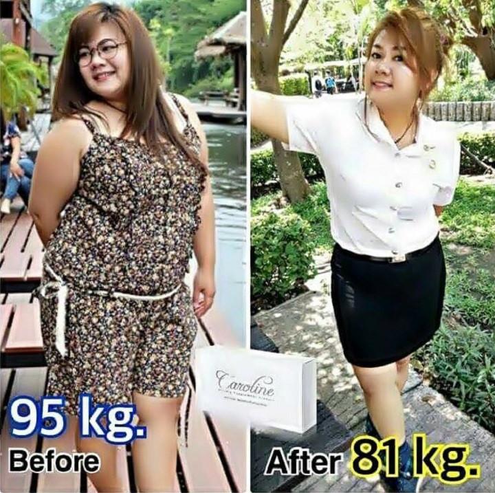 CAROLINE ลดน้ำหนัก,ลดความอ้วน ลดหน้าท้อง ลดพุง ลดต้นแขน ลดต้นขา ลดเอว ลดรอบเอว คาโรไลน์ ดีมาก