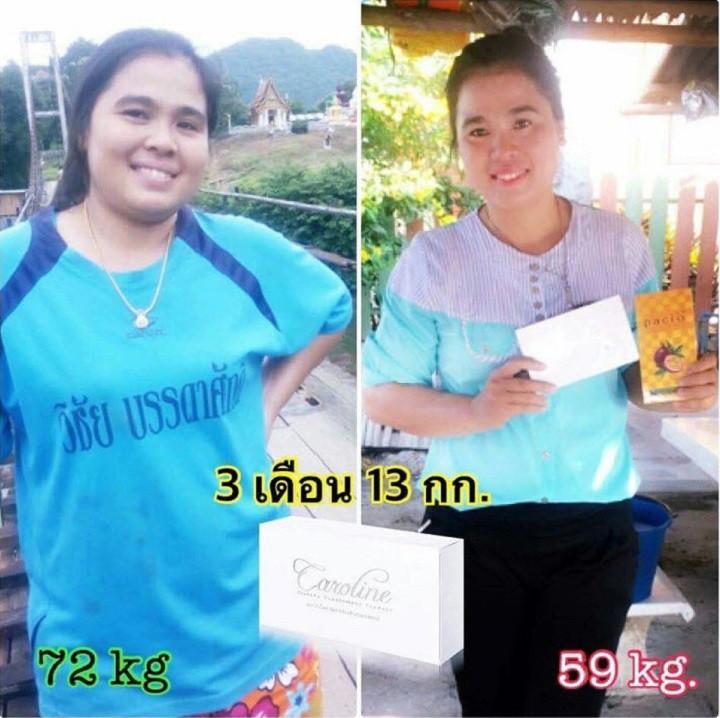 อีกหนึ่งผลลัพธ์สำหรับการ ลดน้ำหนัก หรือ ลดความอ้วน ด้วย Caroline ที่ให้ผลลัพธ์ดีจริง