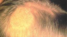 โรคชันนะตุ เป็นศัพท์ที่ใช้เรียก โรคผิวหนังเรื้อรังบริเวณหนังศีรษะที่มีลักษณะอักเสบติดเชื้อ มีน้ำเหลืองน้ำหนองจำนวนมาก โรคนี้เกิดได้จากหลายสาเหตุ ที่พบได้บ่อยคือ เกิดจากเชื้อราของเส้นผมและรูขุมขน ผู้ป่วยจะเริ่มมีอาการคัน ซึ่งเมื่อเกามากก็จะเกิดการติดเชื้อแบคทีเรียซ้อนขึ้นมาทำให้ผื่นลุกลามเป็นแผลหนองจนเกิดโรคชันนะตุ