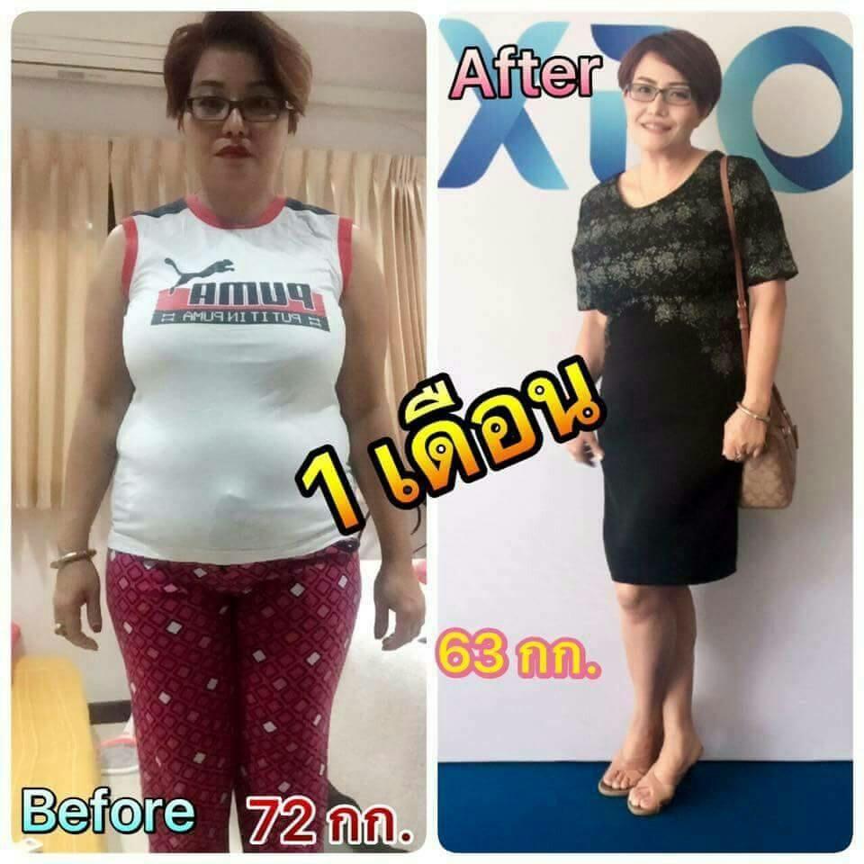 ผลลัพธ์จากการรับประทาน ผลิตภัณฑ์ ลดน้ำหนัก หรือ ลดความอ้วน ชื่อ Caroline ทำให้ ลดน้ำหนัก ได้มากถึง 9 กิโลกรัม ภายใน 1 เดือน