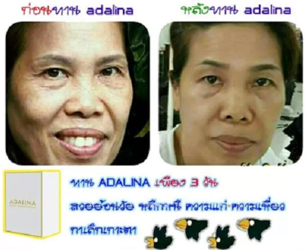 Adalina Stem Cell,ผิวสวยใส,สเต็มเซลล์,Adalina,ผิวขาวใส,ผิวกระจ่างใส,ลด สิว,ลด กระ,ฝ้า