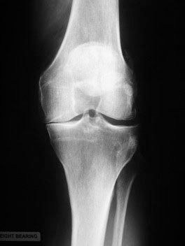 Knee arthritis on xray for physio patient