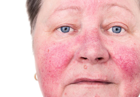 An elderly woman with skin rosacea condi