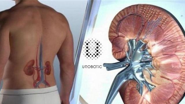 La chirurgie robotique, quels sont les avantages ?