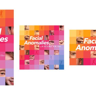 Facial Anomalies
