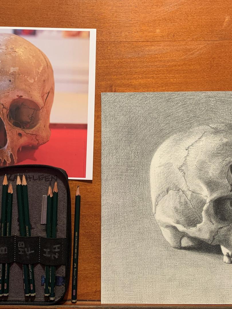 Peruvian Trephined Skull