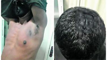 Homem é preso por agredir pai idoso e o cunhado com terçadoem Barcarena
