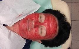 pijawki kosmetologia