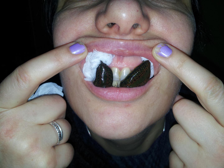 pijawki parodontoza