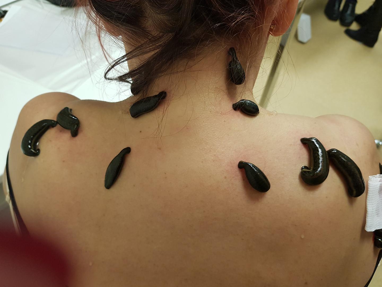 pijawki leczenie bólu