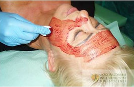 leech therapy facial lifting