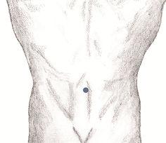 akupunktura pijawką