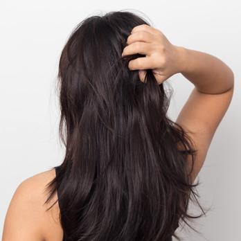 Sleva 20 % na vlasovou mezoterapii