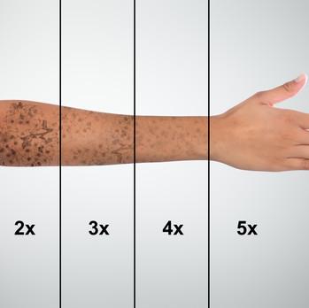 Revoluční odstranění tetování laserem Picoplus