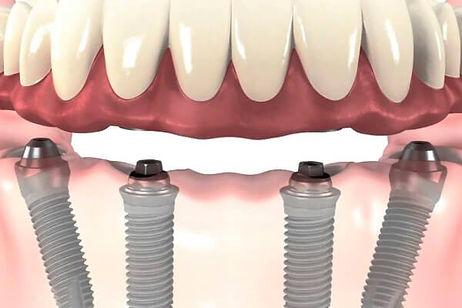 hochu-vstavit-implant.jpg