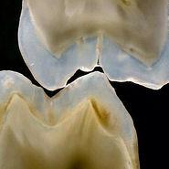 Эстетическая реставрация зубов, светоотверждаемая пломба в Балашихе мкр Янтарный Дентариум