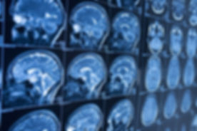Brain-scans.jpg