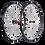 Thumbnail: Progress Magic Clincher wheelset - Kerékszett, peremes