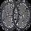 Thumbnail: Vision Trimax 35 Wheels - Grey / Alu Kerékszet