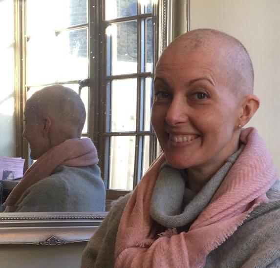 Image of Sara with hair loss