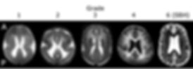 Lissencephaly brain grades