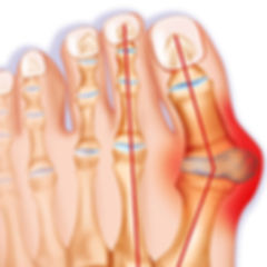 493ss_getty_rm_bunion_illustration.jpg