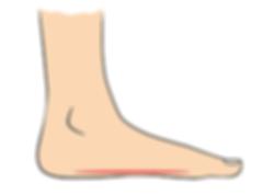 flat-foot-660a.png