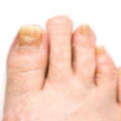 toenail-fungus.jpg