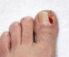 ingrown-toenail.jpg