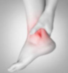 RA_ankles.jpg