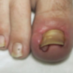 ingrowntoenail.jpg