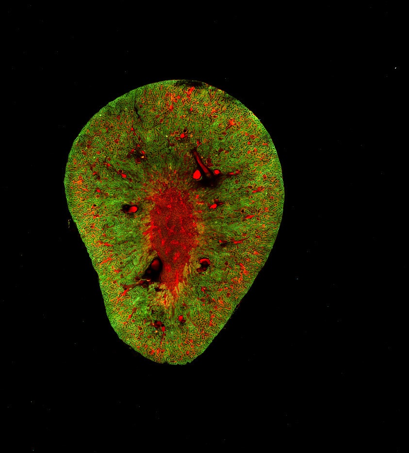 Species: Mouse Tissue: Kidney Fluorophore: Autofluoroescence (Green) Fluorophore: TexasRed (Red)