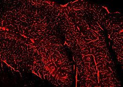TissueCyte single channel mouse brain