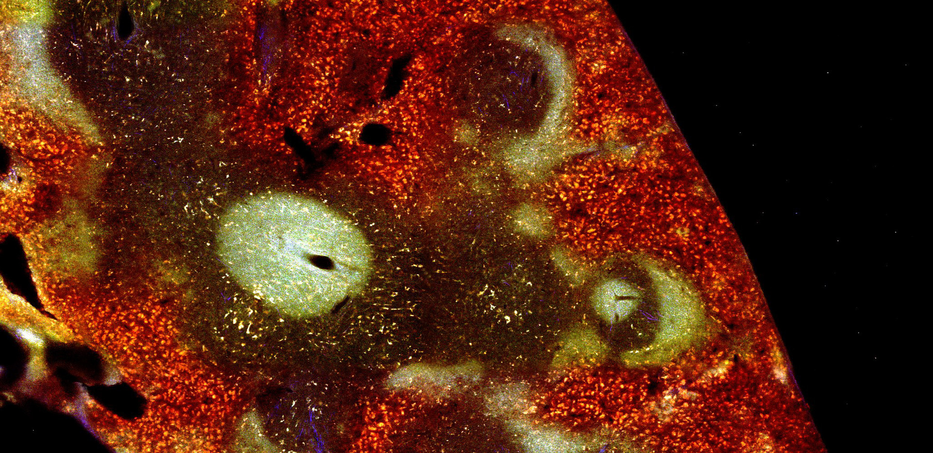 Species: Mouse Tissue: Spleen Fluorophore: Autofluorescence