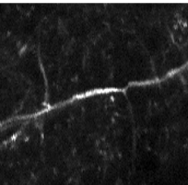 High-resoluton image of axon in mouse brain