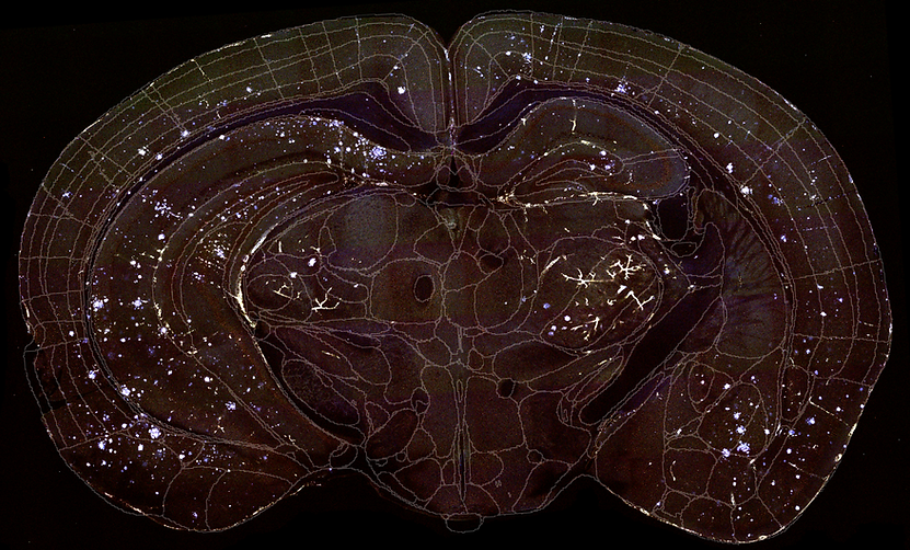 Whole Alzheimer's mouse brain atlased to common coordinate framework