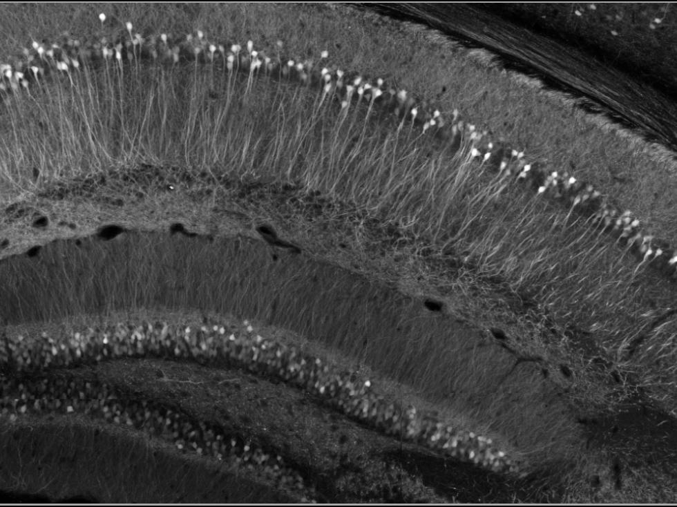 Species: Mouse Tissue: Brain Fluorophore: YFP