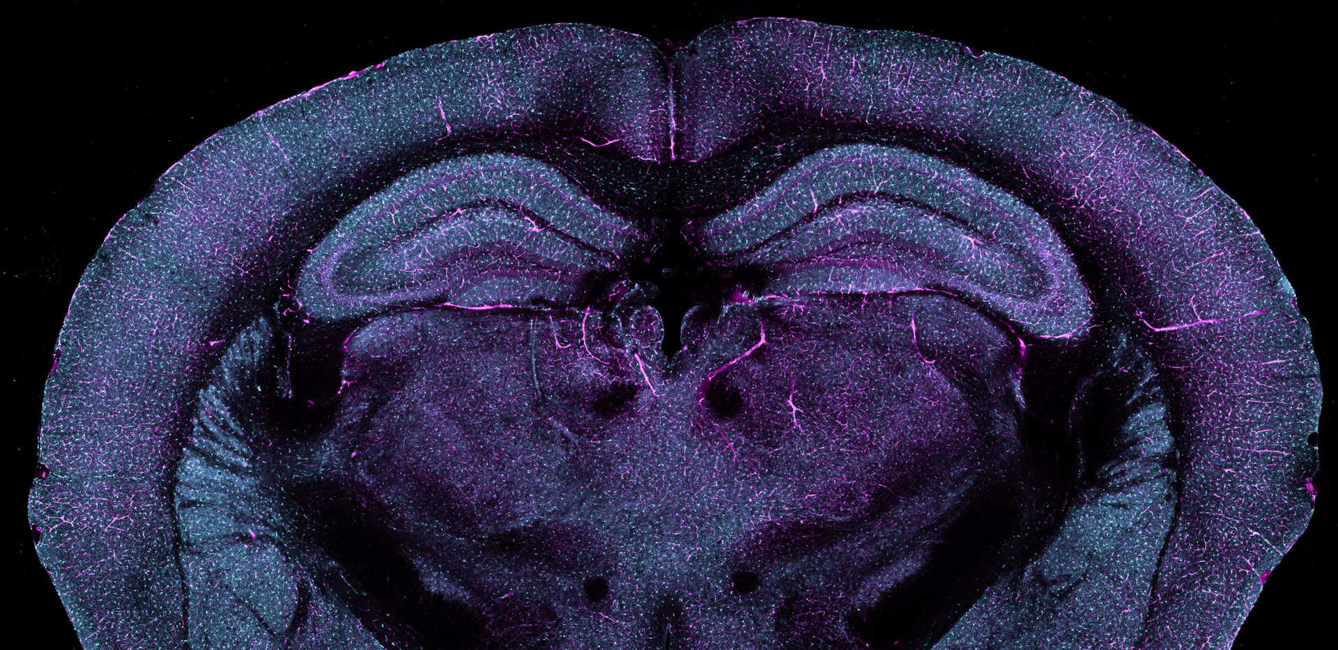 Species: Mouse Tissue: Brain Fluorophore: GFP (Cyan) Fluorophore: Rhodamine-B (Magenta)
